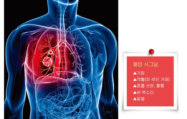 폐암에 걸릴 확률은 흡연자가 비흡연자에 비해 10배 이상 높다. 피우는 담배 양이 많을수록, 흡연을 일찍 시작할수록, 흡연 기간이 길수록 폐암 발병률이 높아진다. [GettyImages]