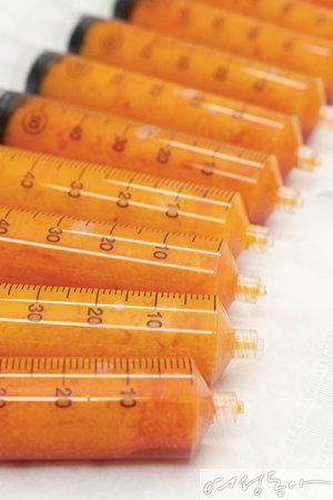 지방추출주사로 뽑아낸 지방의 양을 눈으로 확인할 수 있다.