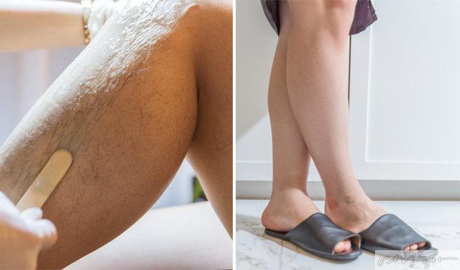 왁싱 전과 후의 다리 모습. 털이 말끔하게 정리되었다.
