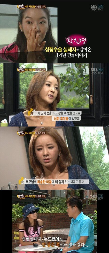 곽진영 성형 부작용에 죽으려고 했었다 뉴스 동아닷컴